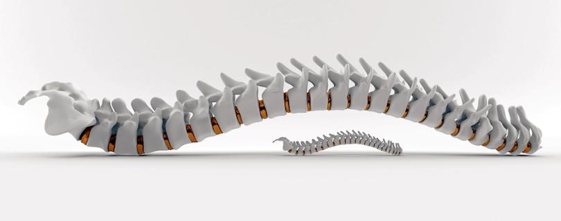 Complex Spine Surgery | Keyhole Spine Surgery Richmond